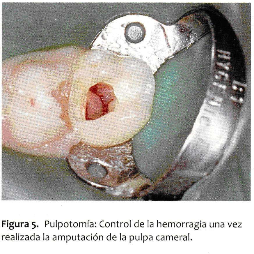 Alternativas al Formocresol en el Tratamiento de Pulpotomías