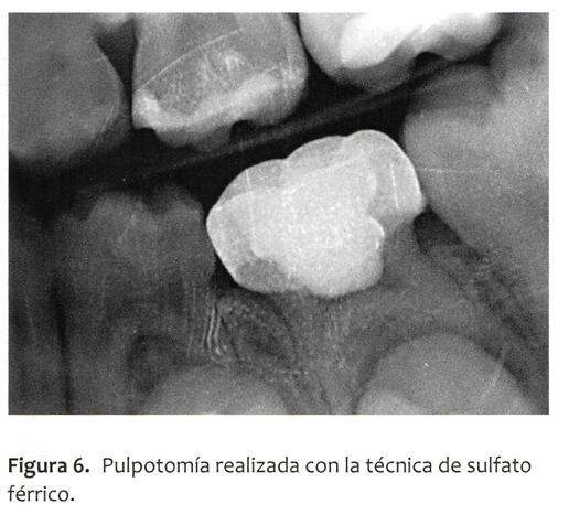pulpo5