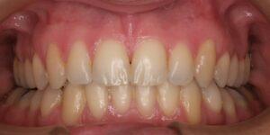 La ortodoncia sirve para corregir problemas funcionales