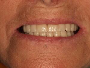 La paciente está contenta - Los implantes sin cirugia y elementos de diagnóstico