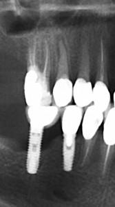 Implantes dentales ¿ por qué la diferencia en el precio ?
