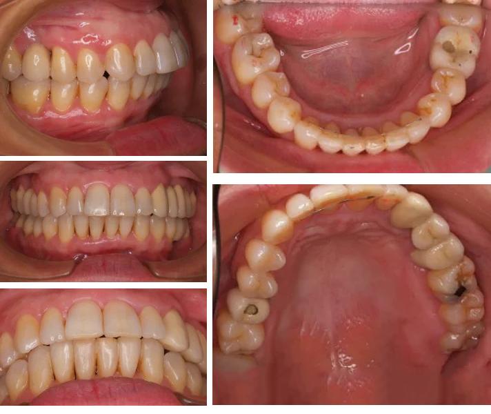 dientes02