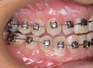 Comienzo del tratamiento de ortodoncia