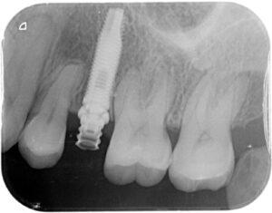 Colocación del implante y carga inmediata