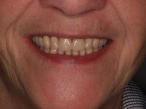 Sonrisa de paciente con implantes y prótesis removible