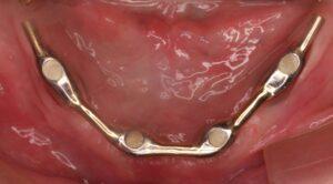 Barra Dolder apoyada sobre cuatro implantes