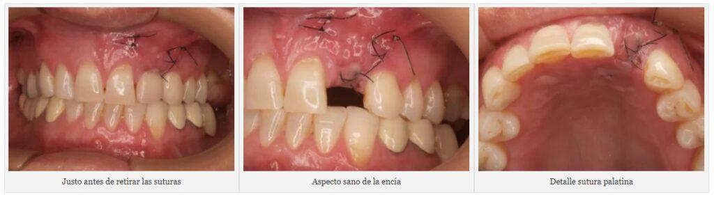 araujo_08